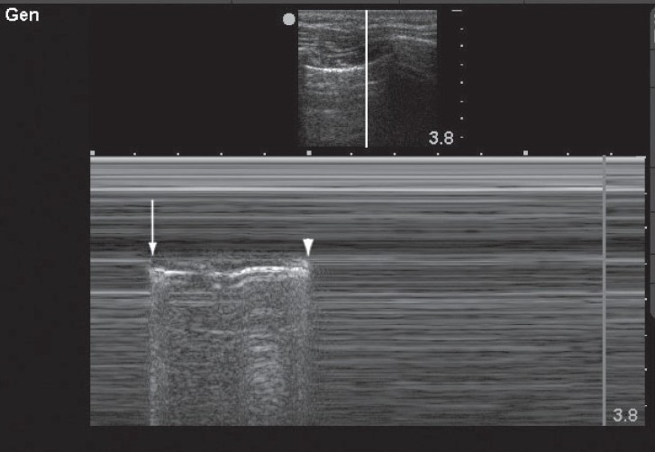 "Figure 3: This M-mode image demonstrates an alternating pattern of absent lung sliding with normal lung sliding. This occurs at the boundary of the pneumothorax where during inspiration the lung is seen to slide transiently (arrow) and during expiration lung sliding is abolished (arrowhead) This phenomenon, known as the ""lung point,"" confi rms the presence of pneumothorax"