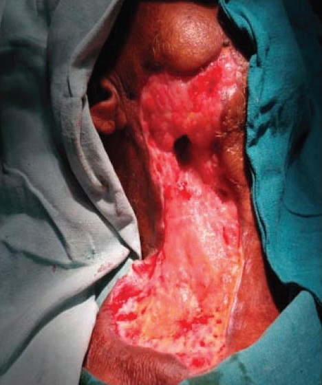 Figure 5 :Granulating areas after debridement and dressing
