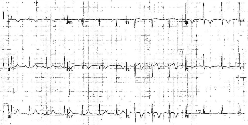 Figure 1 :EKG suspicious for Wellens' syndrome with biphasic T-waves in V1 and V2 and deeply inverted T-waves in V3 and V4