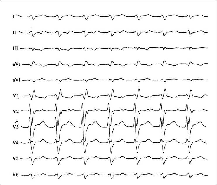 Figure 2 :A 12-lead-ECG of a patient with wide-QRS complex tachycardia from a 28-year-old pregnant woman (31 week of gestation). The tracing shows a right bundle branch block like morphology with a triphasic appearance in V1, but an R/S ratio of less than 1 in V6 and a northwest QRS axis, typical for a ventricular tachycardia. There is one-to-one ventriculoatrial conduction during the tachycardia. The p waves are negative in leads II and III