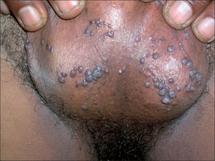Figure 2: Close-up view showing multiple angiokeratoma on scrotum