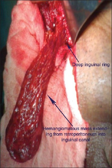Figure 1: Intraoperative photograph showing hemangiomatous mass, extending from retroperitoneum into inguinoscrotal region