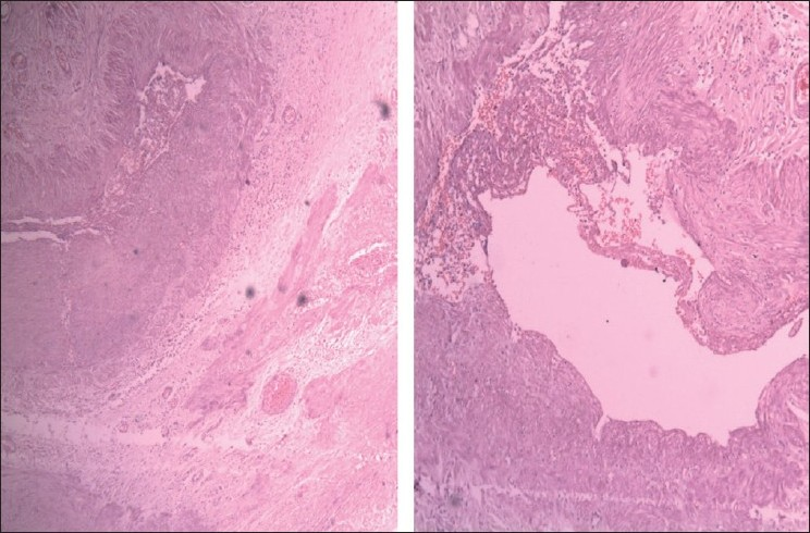 Figure 2a and b: H and E, 40×, Photomicrograph obtained at histological examination showing disorganized muscular wall of veins blending with surrounding soft tissues