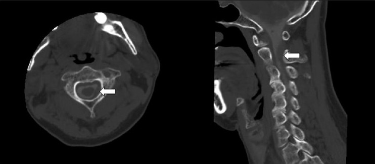 Figure 1: CT myelography showing a spinal dural mass lesion compressing (4 mm size) the spinal canal in the left posterior side at C1-2 levels