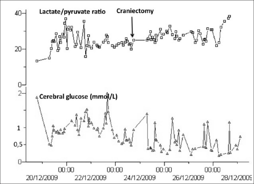 Figure 3: Lactate/pyruvate ratio and cerebral glucose trends. Note normal LPR around 25 during the hours preceding craniectomy. Prior to craniectomy, glucose values were decreased below 0.8mmol/l, which indicates ongoing ischemia (correlation with PtiO2)
