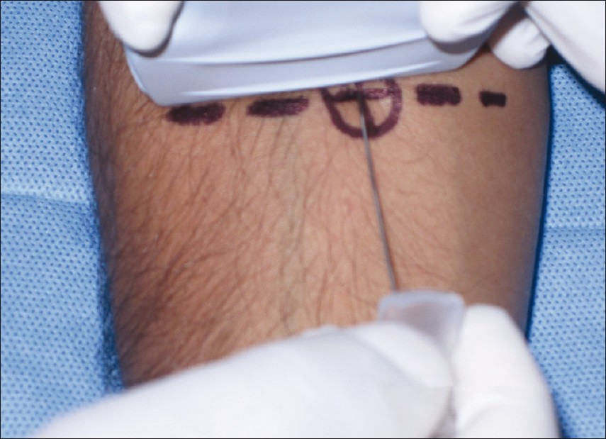 Figure 3: Out of plane approach: needle is placed perpendicular to the transducer