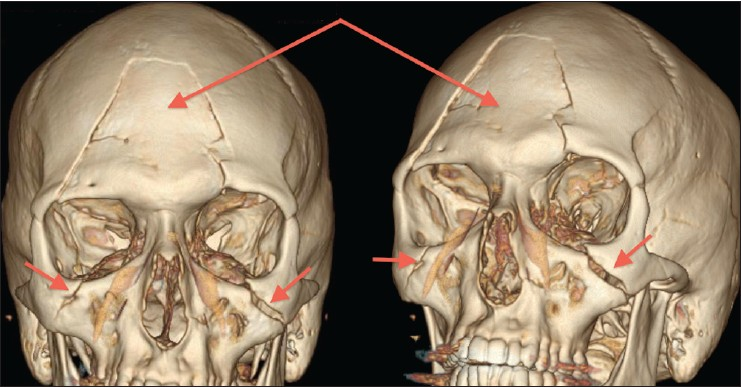 Figure 1: Anterior and anterolateral views of three-dimensional CT reconstructions demonstrating LeFort Type II, frontal, orbital and zygomatic fractures
