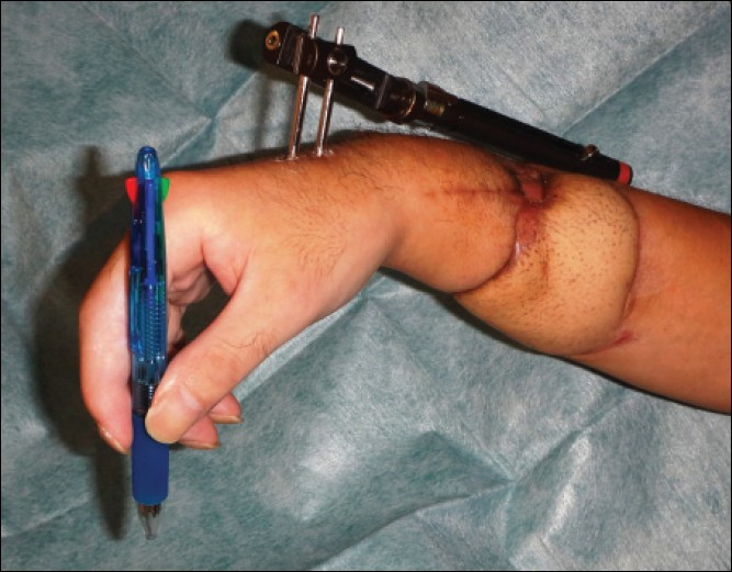Figure 6: View of the reconstructed forearm 3 months after surgery. The patient resumed the pinch function. As the patient lost all forearm flexor muscles, he could not resume power grip function. However, he could flex the fingers and pinch owing to the intrinsic muscles' function