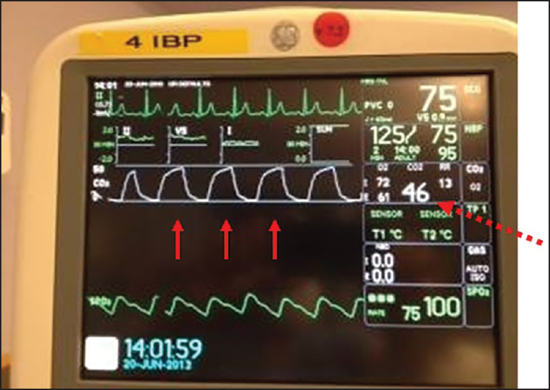 Capnography during cardiopulmonary resuscitation: Current evidence