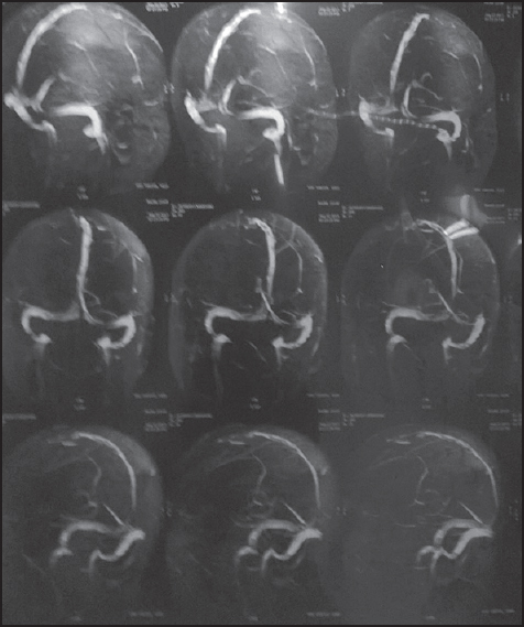 Figure 1: Magnetic resonance (MR) venography showing superior sagittal sinus thrombosis
