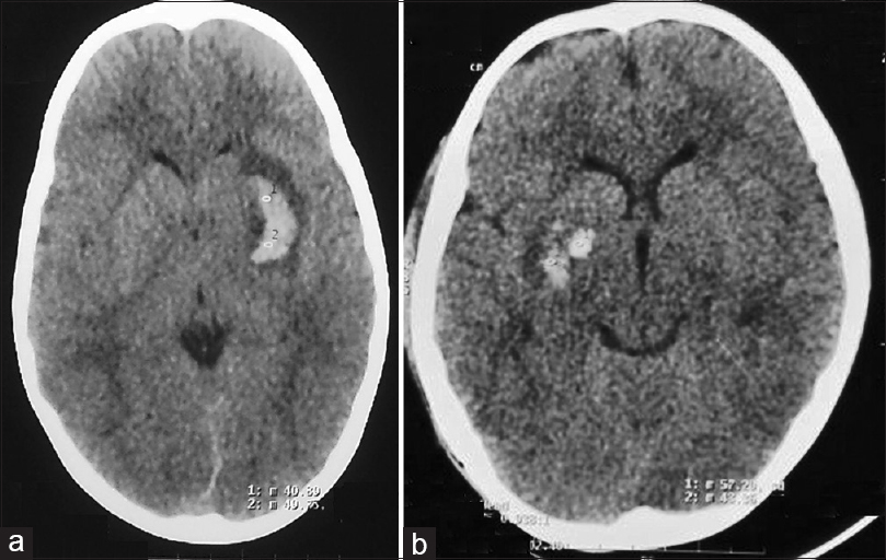 dating subdural hematoma