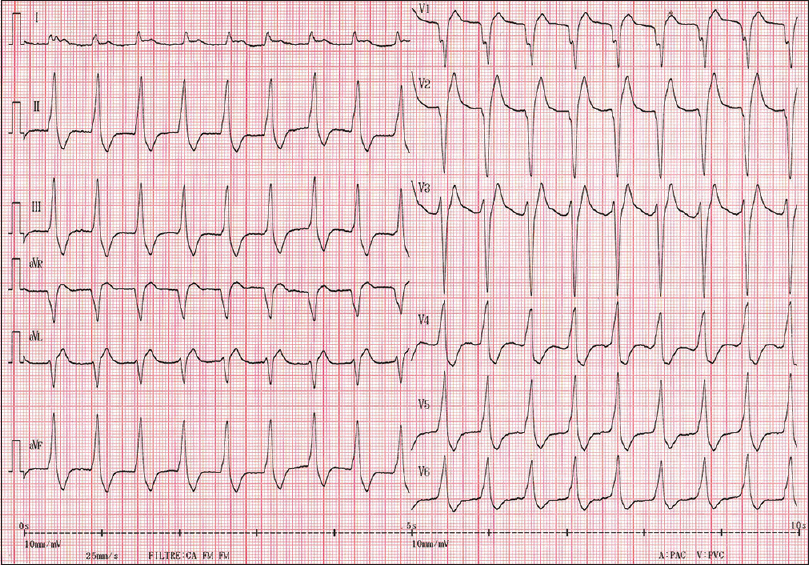 Figure 1: Electrocardiogram showing an accelerated idioventricular rhythm 15 min after ED admission