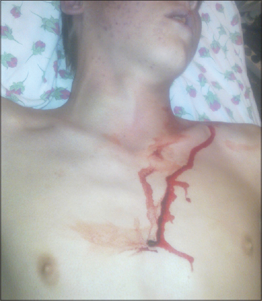 Figure 1: Patient with 0.4 cm pellet gun wound over the sternum, cyanosis, and jugular vein distention