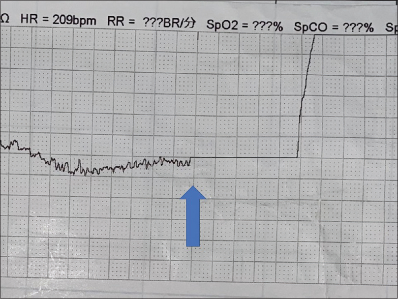 Figure 2: Strip of an electrocardiogram when an electric shock is performed. As a patient becomes ventricular fibrillation so that the patient receives electric shock (arrow) during flight by a helicopter