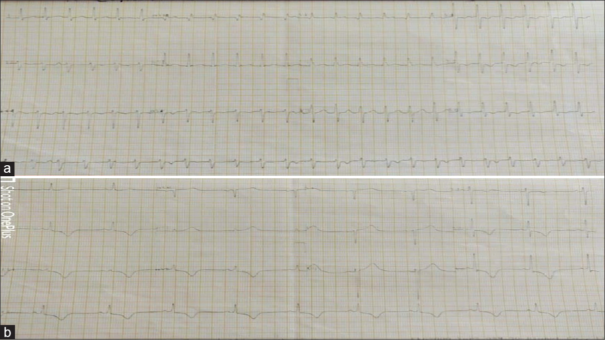 Figure 2: (a) 12-lead electrocardiogram of the patient showing regular intermediate QRS complex tachycardia with right bundle branch morphology with left axis deviation and AV dissociation suggestive of fascicular ventricular tachycardia. (b) Electrocardiogram of the same patient postcardioversion showing positive T-wave in leads I and aVL and negative T-wave in leads II, III, aVF, and V4 to V6 with precordial T-wave inversion more than T-wave inversion in inferior leads suggestive of memory T-waves